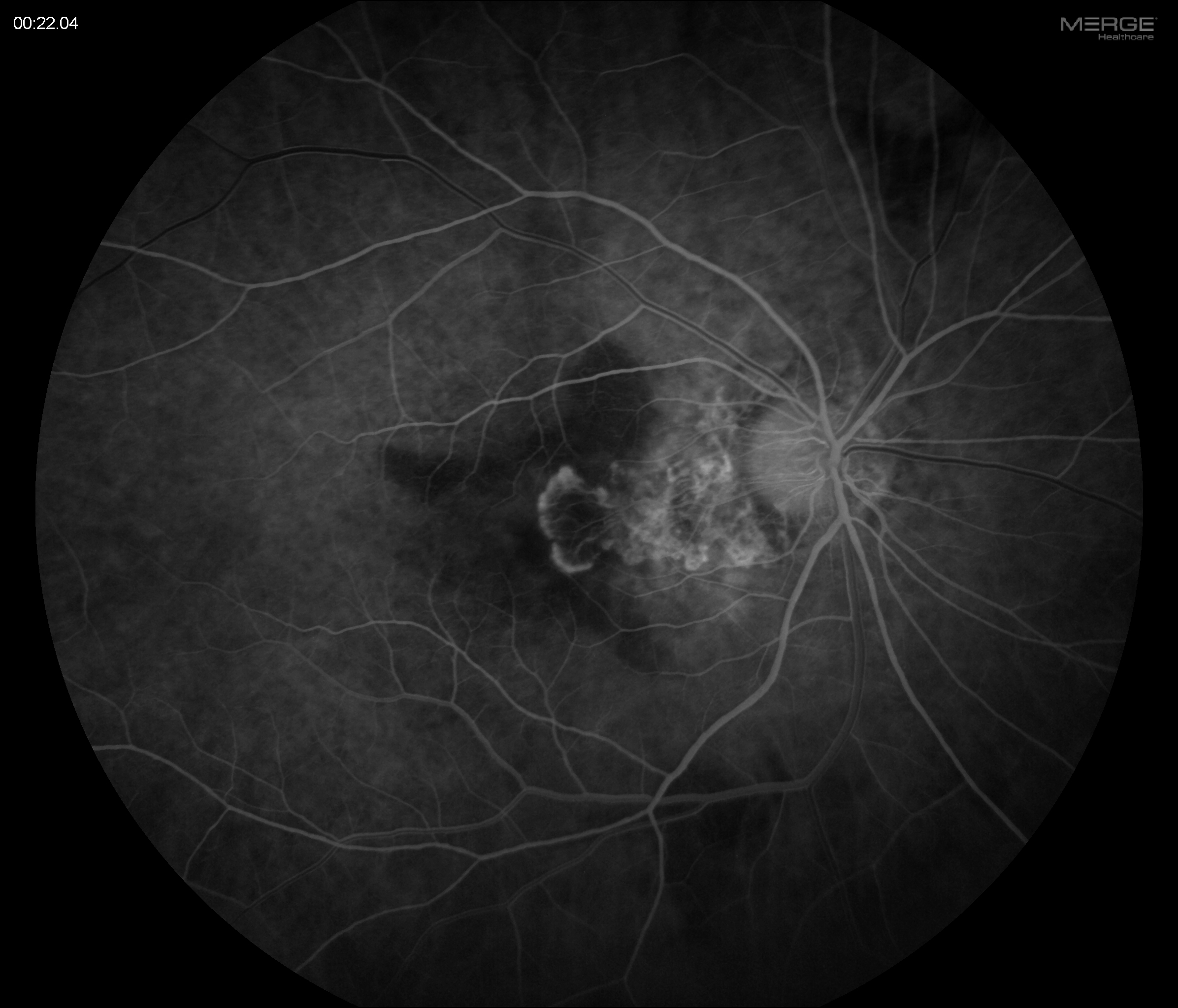 Wet AMD Fluorescein Angiography