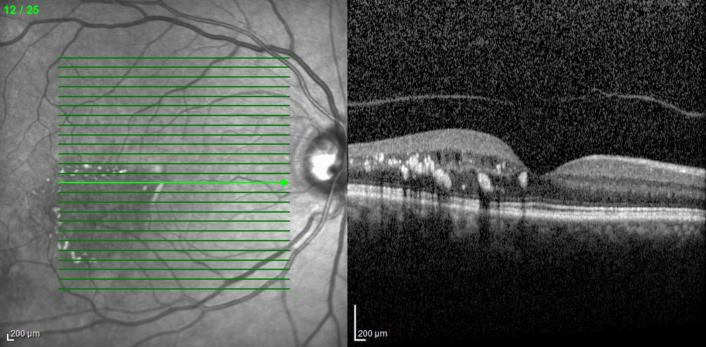 Branch Retinal Vein Occlusion with Macular Edema